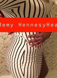 Remy HennesyHeat - escort in Ottawa Photo 4 of 5